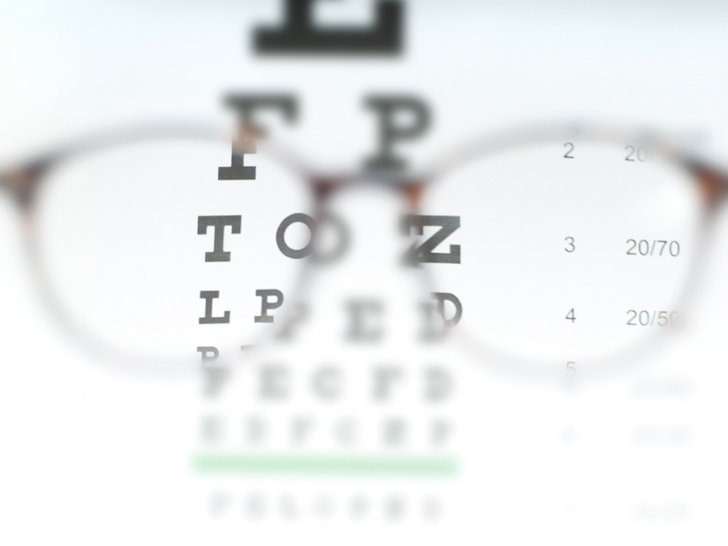 From visual field testing to color vision testing, we have you covered